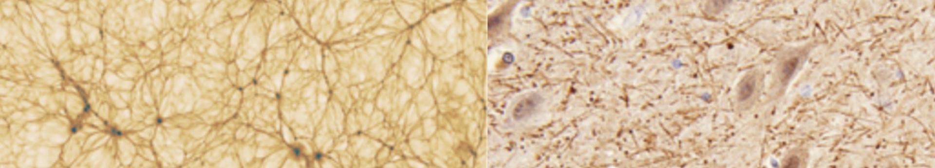 Coincidenze cosmiche: le inaspettate similarità tra rete cosmica e neuronale -